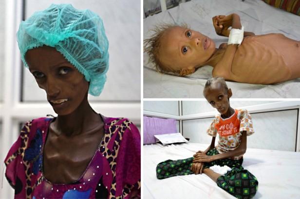 composite-starving-in-yemen