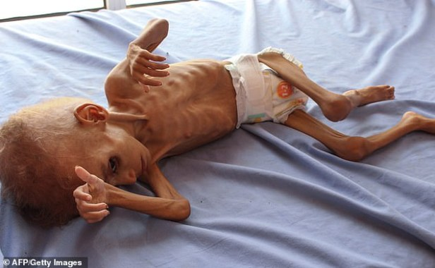 YEMEN-CONFLICT-FAMINE